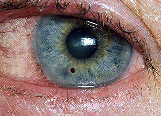 Что делать, если попала сварка в глаза?