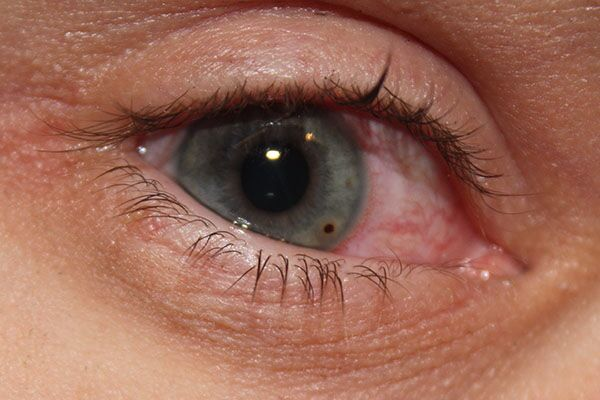 Осколок попал в глаз нет ни покраснения