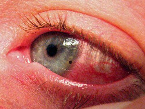 Раздражающее вещество на оболочке глаза