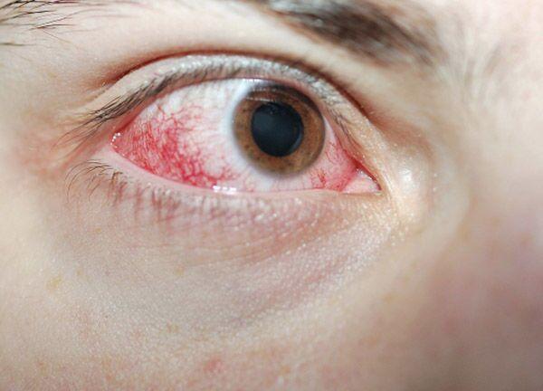 Ожог глаза первой степени