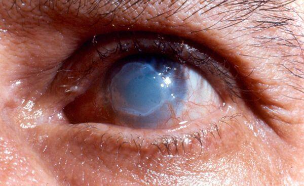 Третья стадия ожога глаза после сварки
